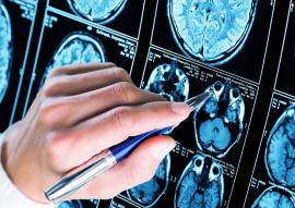Un vaccin contre Alzheimer