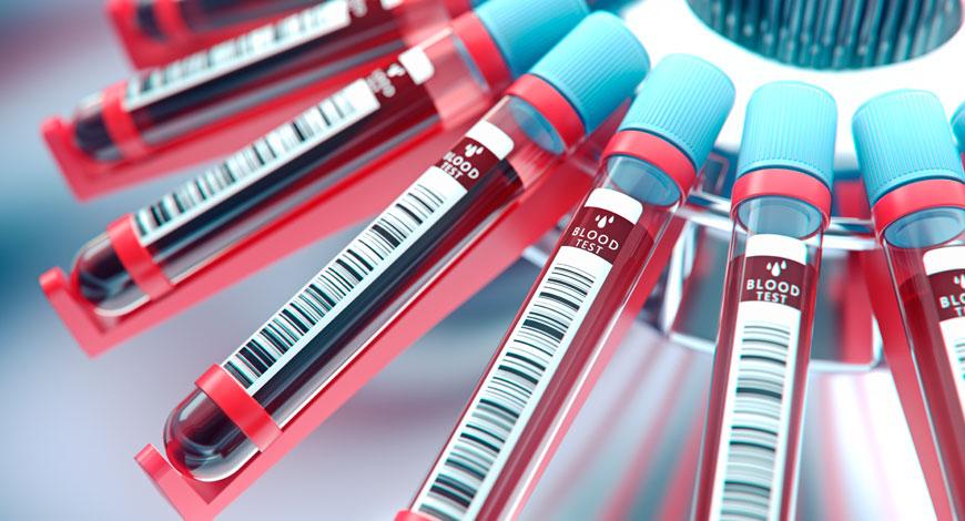 Un test sanguin pour dépister Alzheimer